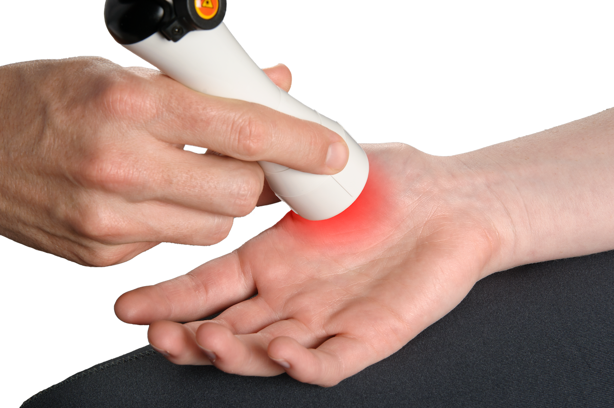 laser treatment for hand