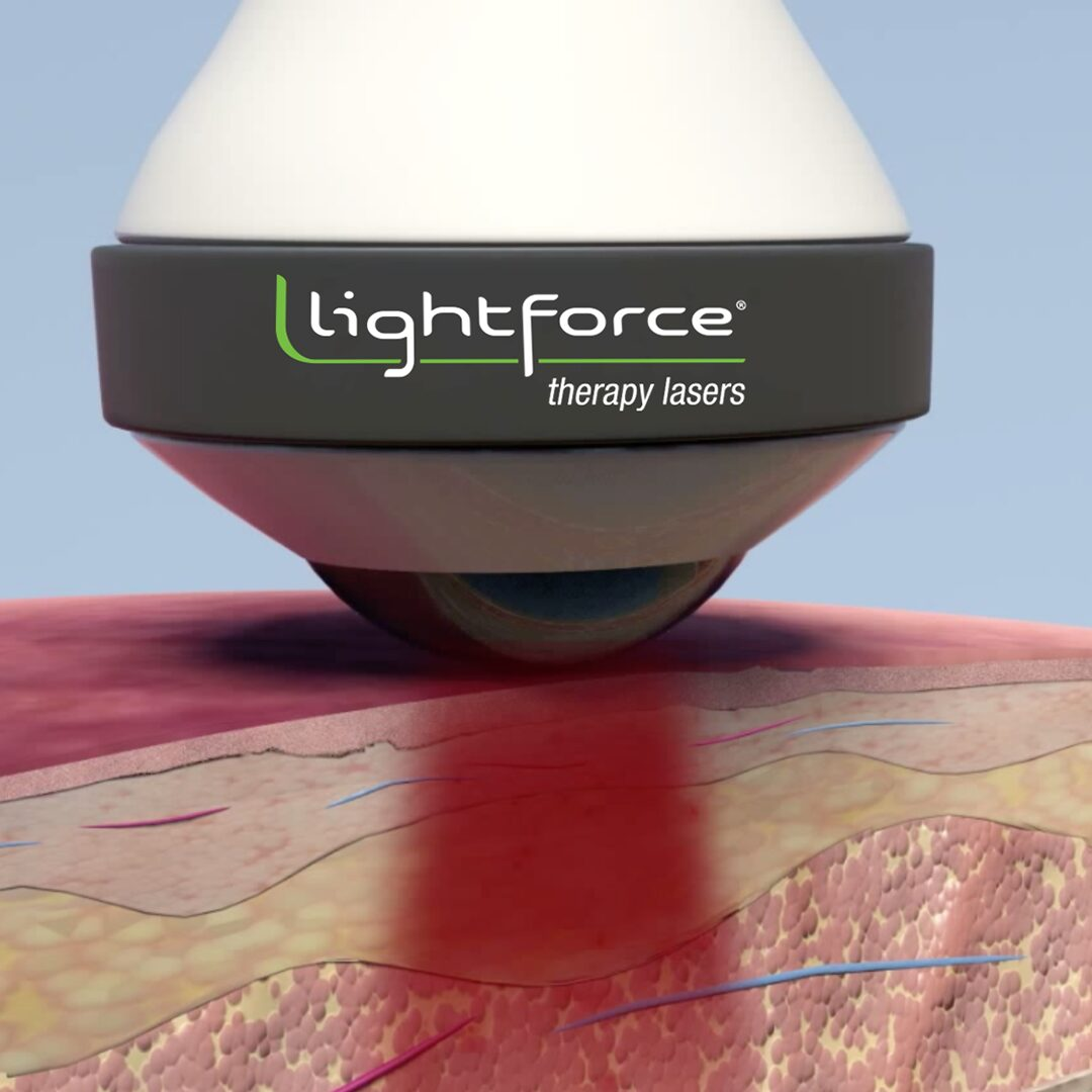Lightforce class iv laser therapy